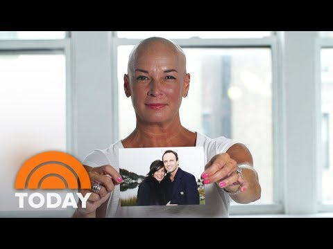 Women Reveal What It's Like To Experience Permanent Hair Loss | TODAY