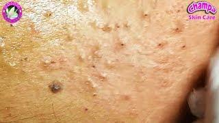 Traitement de l'acné! Comment enlever les points noirs et blancs sur le visage 37