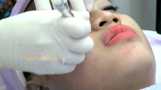 Intip Yuk Perawatan Facial Diamond Melinda