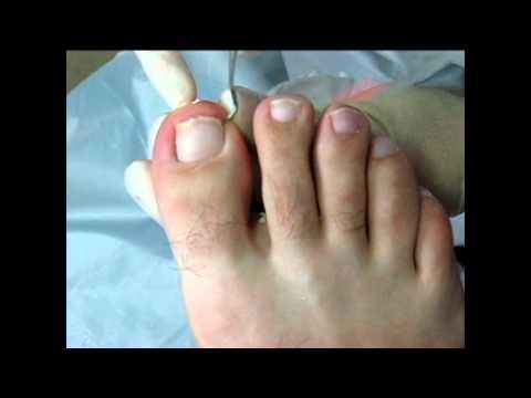 Болит большой палец после педикюра