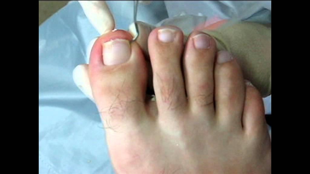 Помогите: ноготь врастает в палец