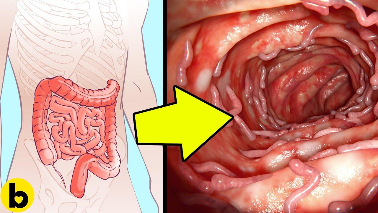 schistosomiasis organizmus az emberi papillomavírus viszketést okozhat-e