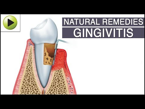 how to get rid of gingivitis naturally