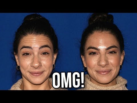 Botox Before And After Youtube