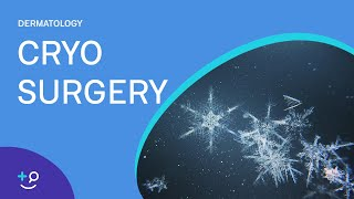 Diseases Treated With Cryotherapy