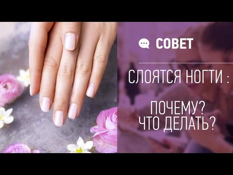 Что делать в домашних условиях, если слоятся ногти?
