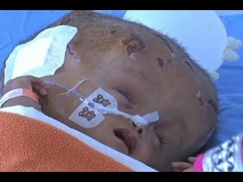 Bayi di India Membaik Setelah Operasi Hidrosefalus
