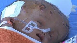 Anak kembar usia batita di Waingapu, Sumba Timur, Nusa Tenggara Barat, menderita penyakit penumpukan.
