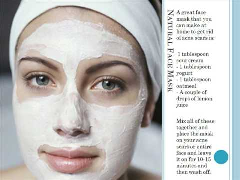 Not very home remedies for facial scars authoritative message
