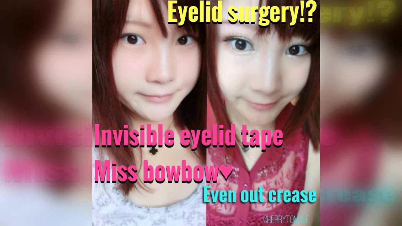 How to even out your eyelids without surgery youtube - How To Even Out Your Eyelids Without Surgery Youtube 10