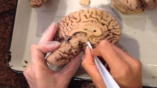 Анатомия человека. Мозг.