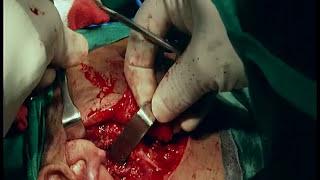 Surgery Superficial Parotidectomy Full Surgery Narration