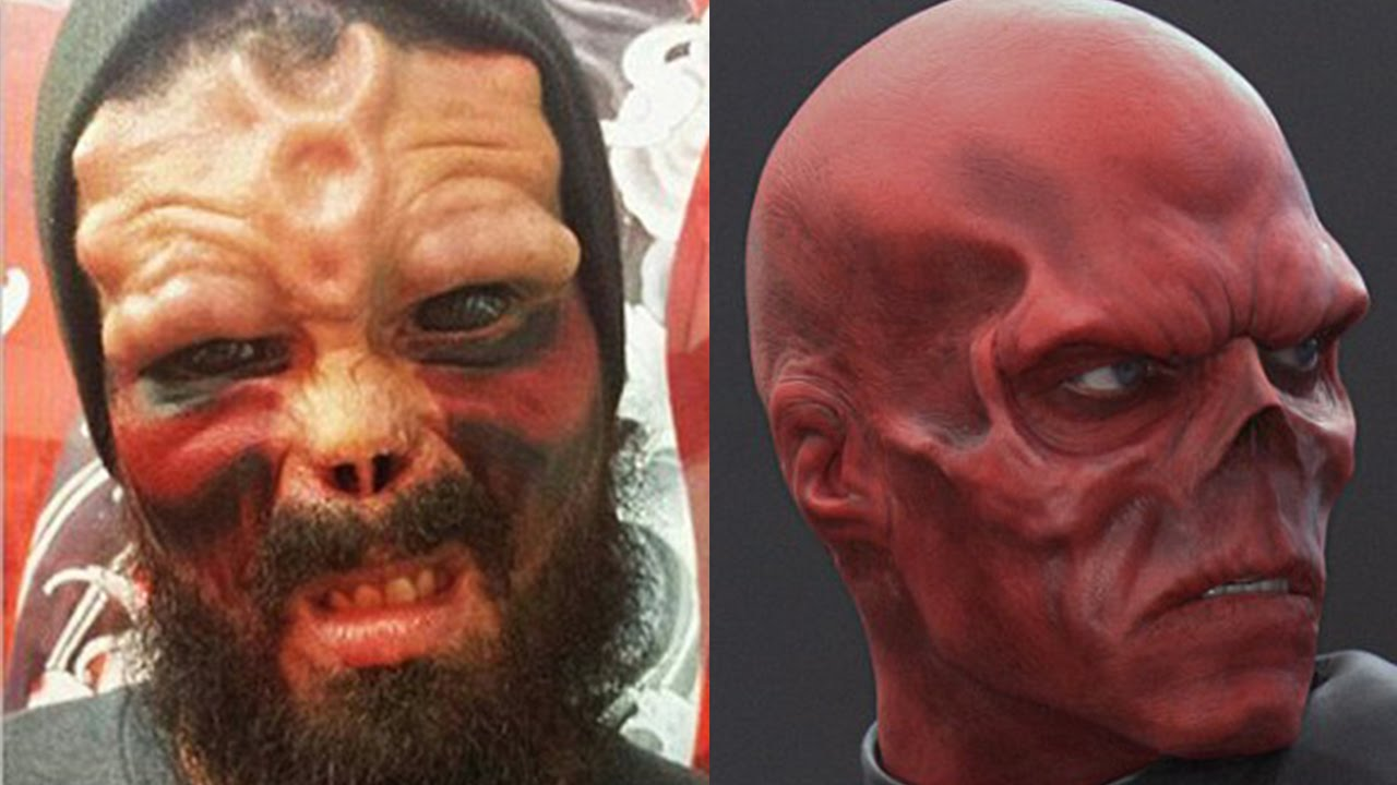 Man cuts off nose tattoos eyeballs to look like red for Cut off tattoo