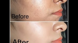 miracle oil for clear skin tried and tested to remove acne scars stretch marks and more