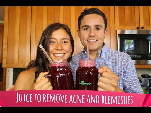 hqdefault - Will Juicing Cause Acne