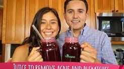 hqdefault - Prune Juice Help Acne