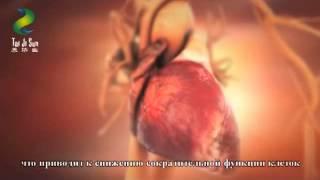 видео лечение сосудистых заболеваний лечение заболеваний