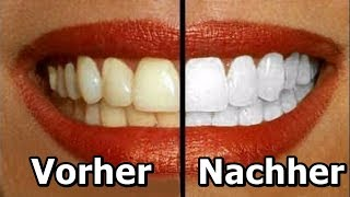 5 natürliche Hausmittel, die deine Zähne aufhellen!