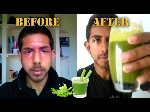 Juicing for Clear Skin | Why YOU should juice daily