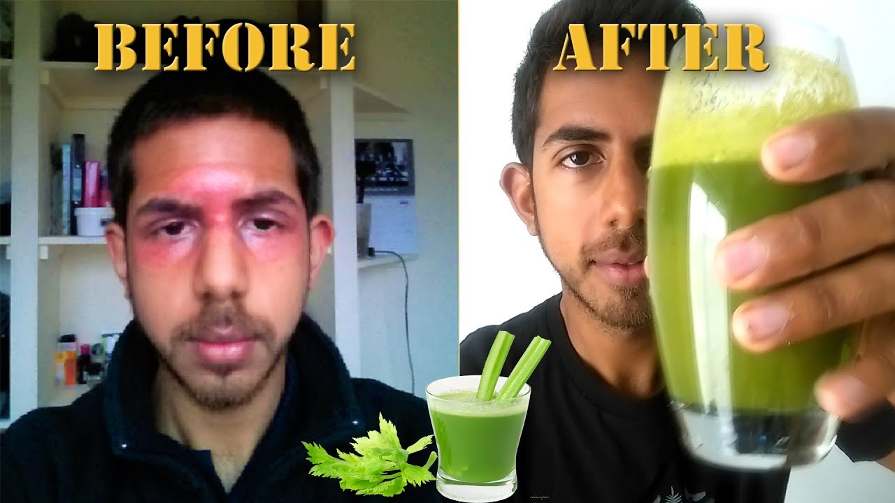 Juicing for Clear Skin   Why YOU should juice daily