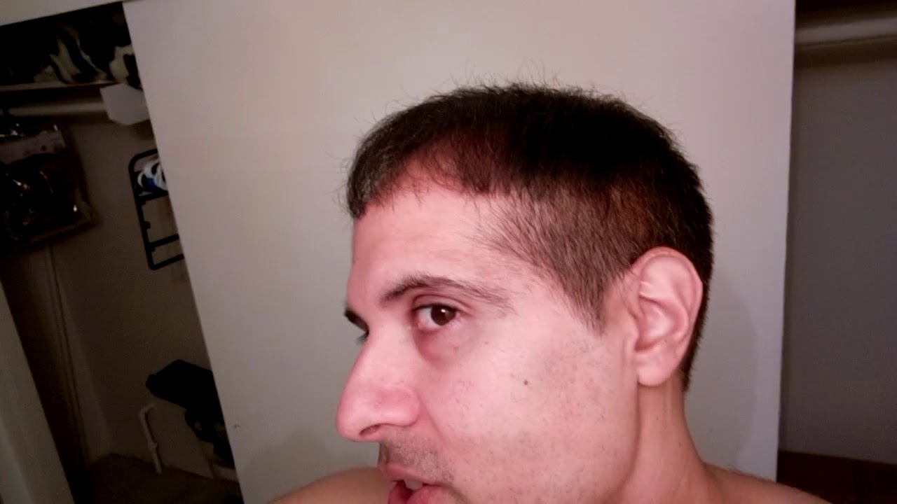 Hair Transplant With Hair Dye Looks Amazing Must Try Youtube