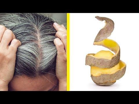 Débarrassez-vous des cheveux blancs en utilisant uniquement la pomme de terre! - Solution finale