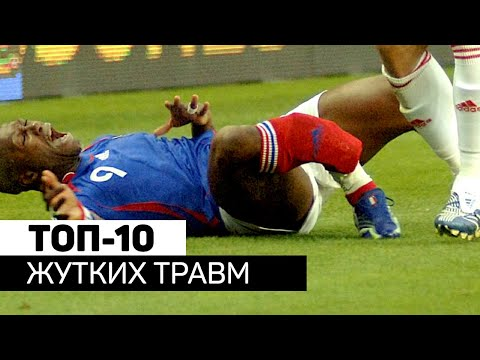 Самые ЖУТКИЕ травмы футболистов. Футбольный топ. @120 Ярдов