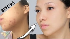 hqdefault - How To Cure Pimples And Pimple Marks Naturally