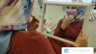 Dr. Ortodontist / Hastamızın Tedavi Bitimi
