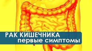 видео ободочная кишка симптомы