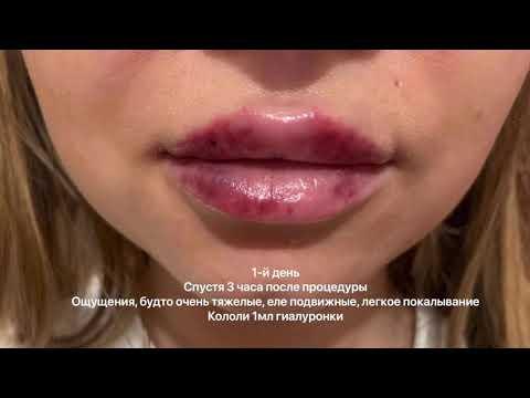 Губы болят после гиалуроновой кислоты