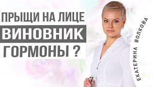 Прыщи на лице Разбираем возможные причины Врач акушер гинеколог Екатерина Волкова