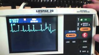 Cardioversion of Atrial Fibrillation