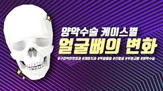 양악수술 케이스별 얼굴뼈의 변화, 턱끝수술+양악수술