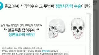 작은얼굴성형외과 올포(all4)사각턱수술