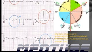 Cardiac Axis Deviations Made Easy