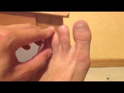 soigner mycoses pieds soin et beaut des pieds astuce contre les mycoses youtube. Black Bedroom Furniture Sets. Home Design Ideas