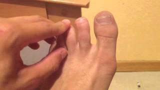 Soigner mycoses pieds - Soin et Beauté des pieds: Astuce contre les mycoses