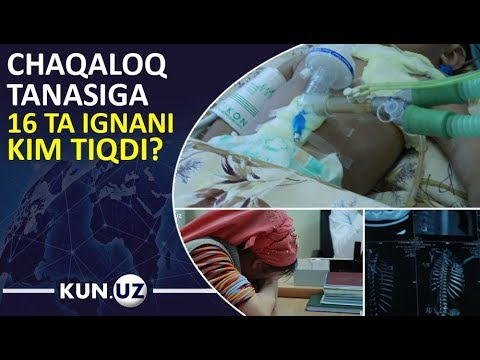 11 OYLIK GO'DAK TANASIDAN 16 DONA IGNA TOPILDI