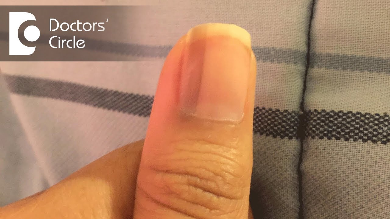 What causes vertical black lines on fingernails? - Dr. Aruna Prasad ...