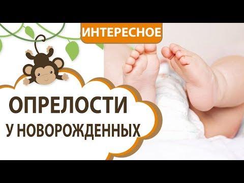 опрелости у новорожденных || MOMI TV