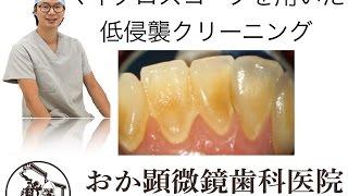 マイクロスコープを用いた歯石除去(おか顕微鏡歯科医院)
