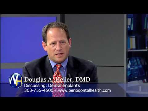 Replacing Missing Teeth with Dental Implants with Aurora, CO Periodontist Douglas Heller, DMD