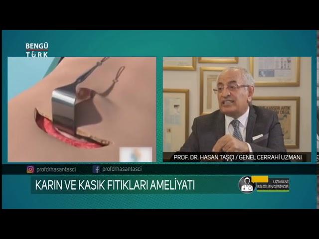 Karın ve Kasık Fıtıkları Hakkında Prof. Dr. Hasan Taşçı bilgilendiriyor...