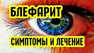 Аллергия на глазах: симптомы и лечение, профилактика заболевания (фото и видео)