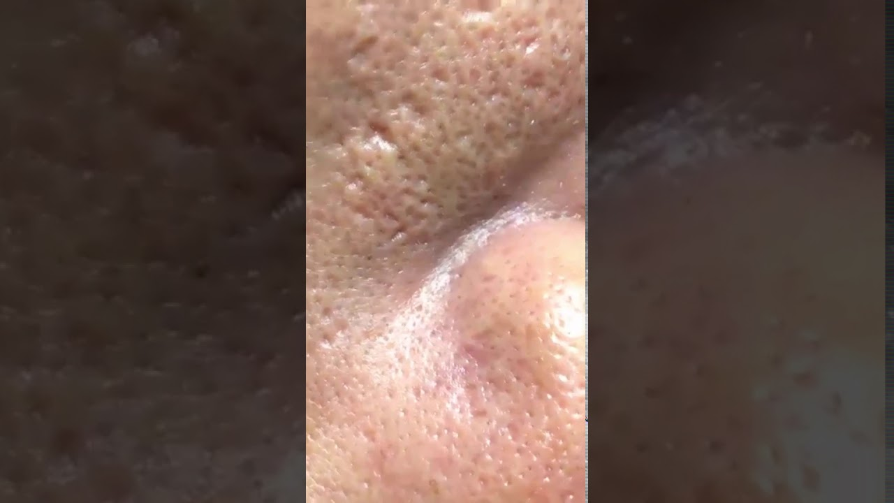 How To Remove Blackheads And Whiteheads On Face Easy #195 ✦The Most Satisfied Blackheads ✦#shorts