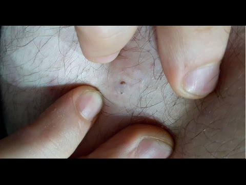 3 big blackheads (one double) extracted popped from body ...