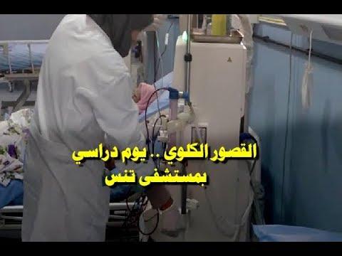مستشفى أحمد بوراس تنس : يوم علمي و دراسي حول داء القصور الكلوي