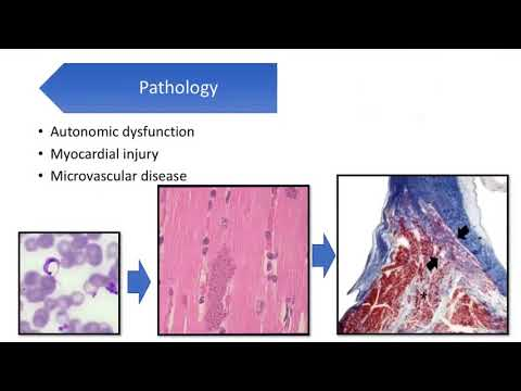 Multimodality Cardiac Imaging in Patients with Chagas Disease Webinar