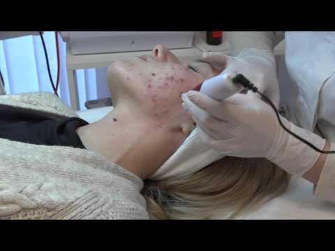 Tretman Dermapenom